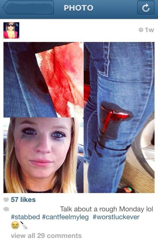 best viral pictures instagram injury The Best Viral Pictures Of The Week, Volume 9